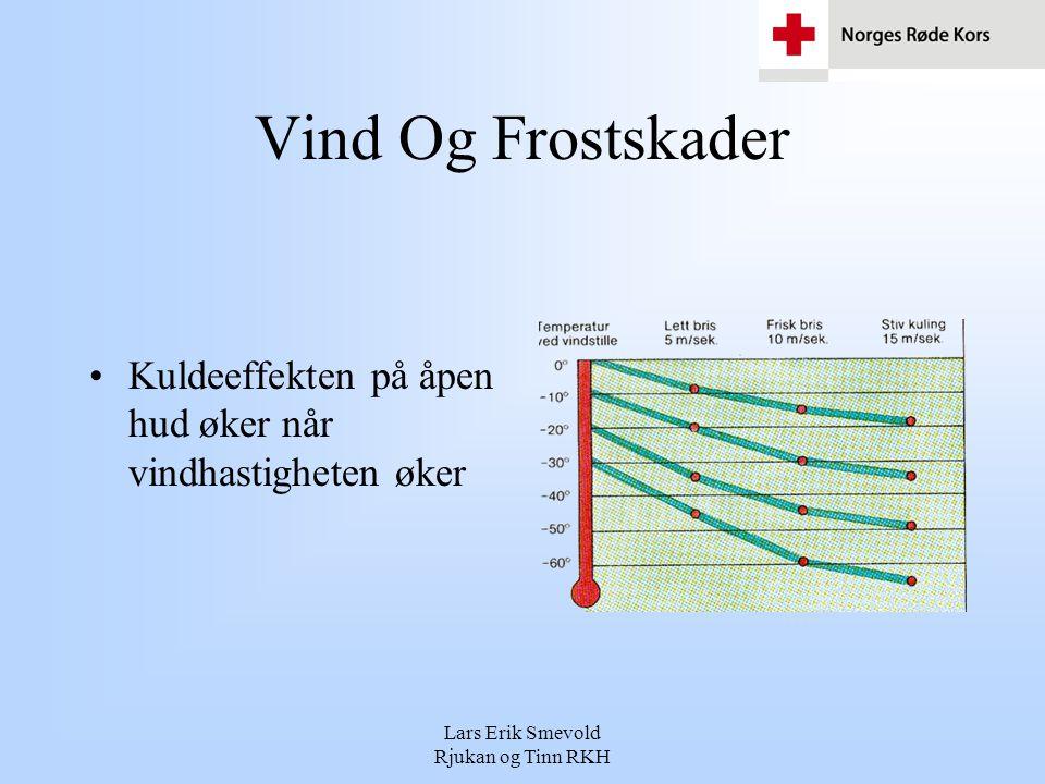 Lars Erik Smevold Rjukan og Tinn RKH Vind Og Frostskader •Kuldeeffekten på åpen hud øker når vindhastigheten øker