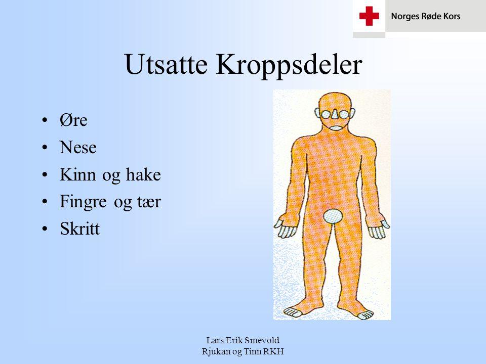 Lars Erik Smevold Rjukan og Tinn RKH Utsatte Kroppsdeler •Øre •Nese •Kinn og hake •Fingre og tær •Skritt