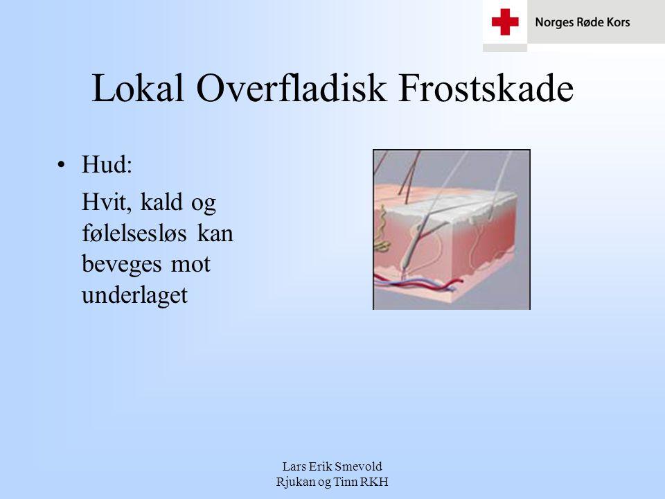 Lars Erik Smevold Rjukan og Tinn RKH Lokal Overfladisk Frostskade •Hud: Hvit, kald og følelsesløs kan beveges mot underlaget