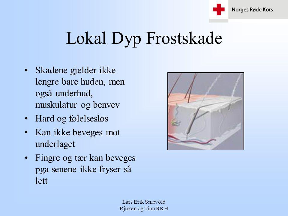 Lars Erik Smevold Rjukan og Tinn RKH Lokal Dyp Frostskade •Skadene gjelder ikke lengre bare huden, men også underhud, muskulatur og benvev •Hard og fø
