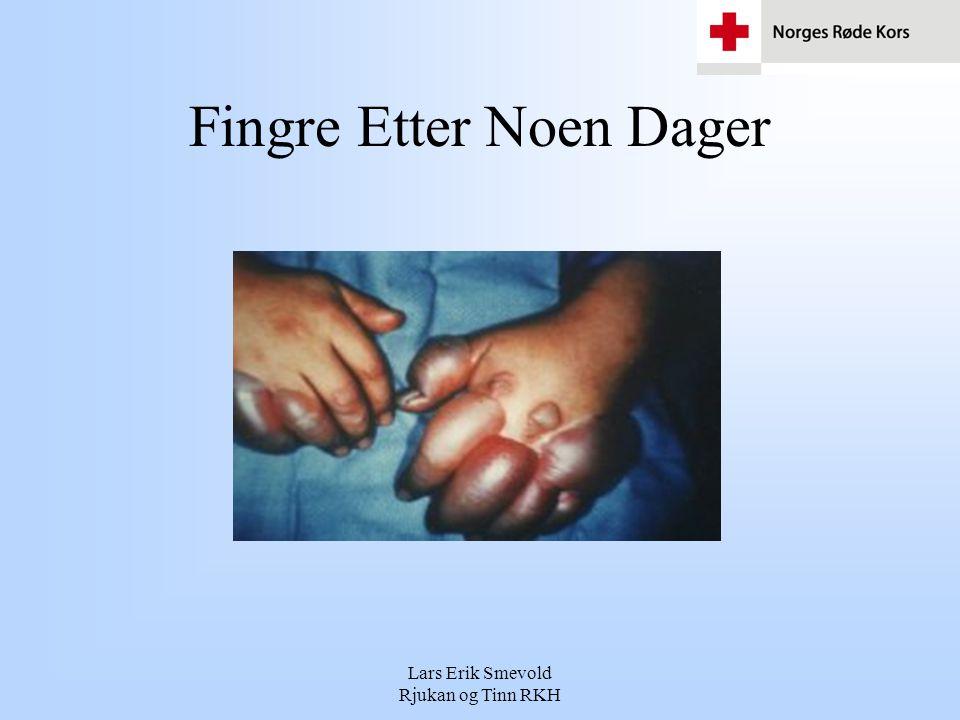 Lars Erik Smevold Rjukan og Tinn RKH Fingre Etter Noen Dager