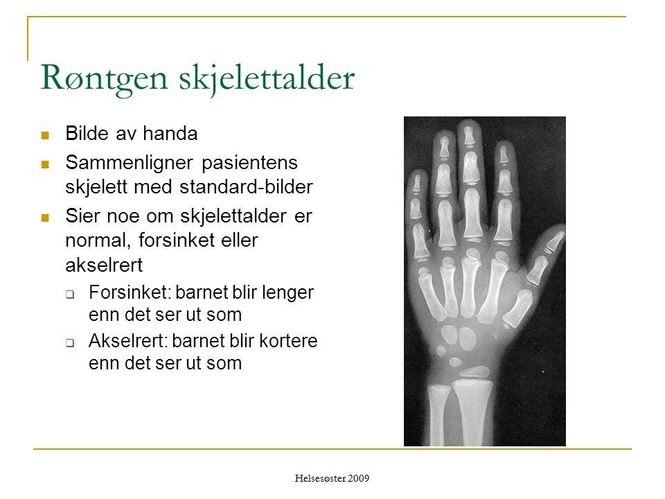 Helsesøster 2009 Røntgen skjelettalder  Bilde av handa  Sammenligner pasientens skjelett med standard-bilder  Sier noe om skjelettalder er normal,