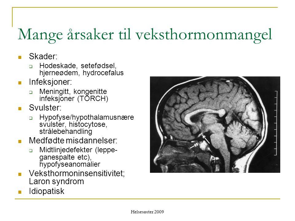 Helsesøster 2009 Mange årsaker til veksthormonmangel  Skader:  Hodeskade, setefødsel, hjerneødem, hydrocefalus  Infeksjoner:  Meningitt, kongenitt