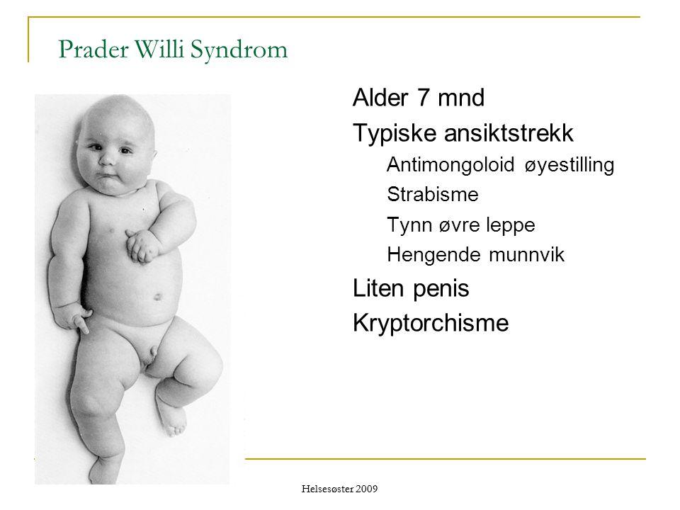 Helsesøster 2009 Prader Willi Syndrom Alder 7 mnd Typiske ansiktstrekk Antimongoloid øyestilling Strabisme Tynn øvre leppe Hengende munnvik Liten peni