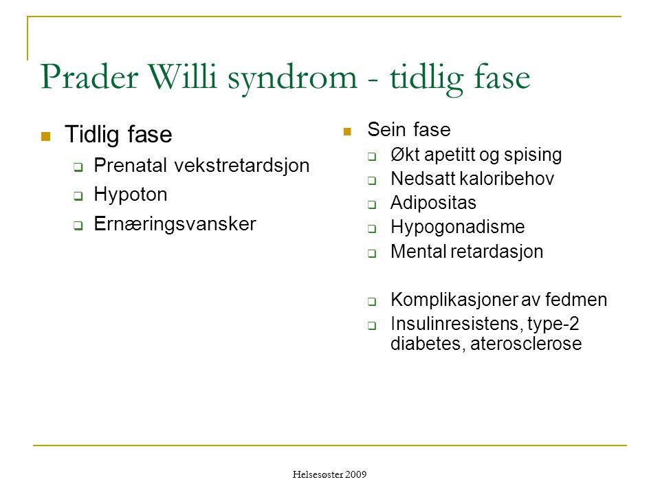 Helsesøster 2009 Prader Willi syndrom - tidlig fase  Tidlig fase  Prenatal vekstretardsjon  Hypoton  Ernæringsvansker  Sein fase  Økt apetitt og