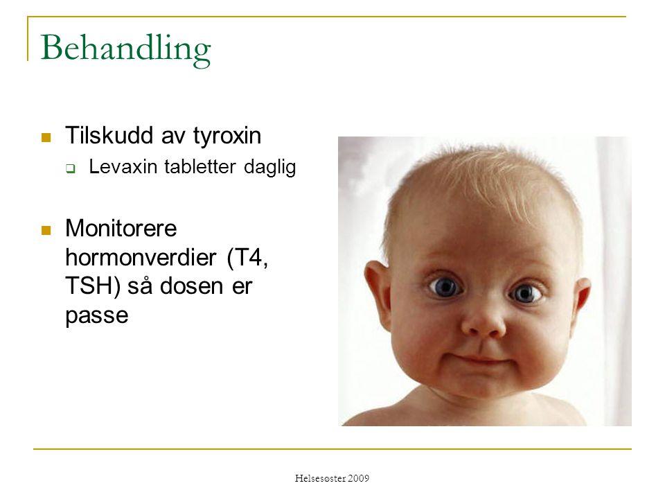 Helsesøster 2009 Behandling  Tilskudd av tyroxin  Levaxin tabletter daglig  Monitorere hormonverdier (T4, TSH) så dosen er passe