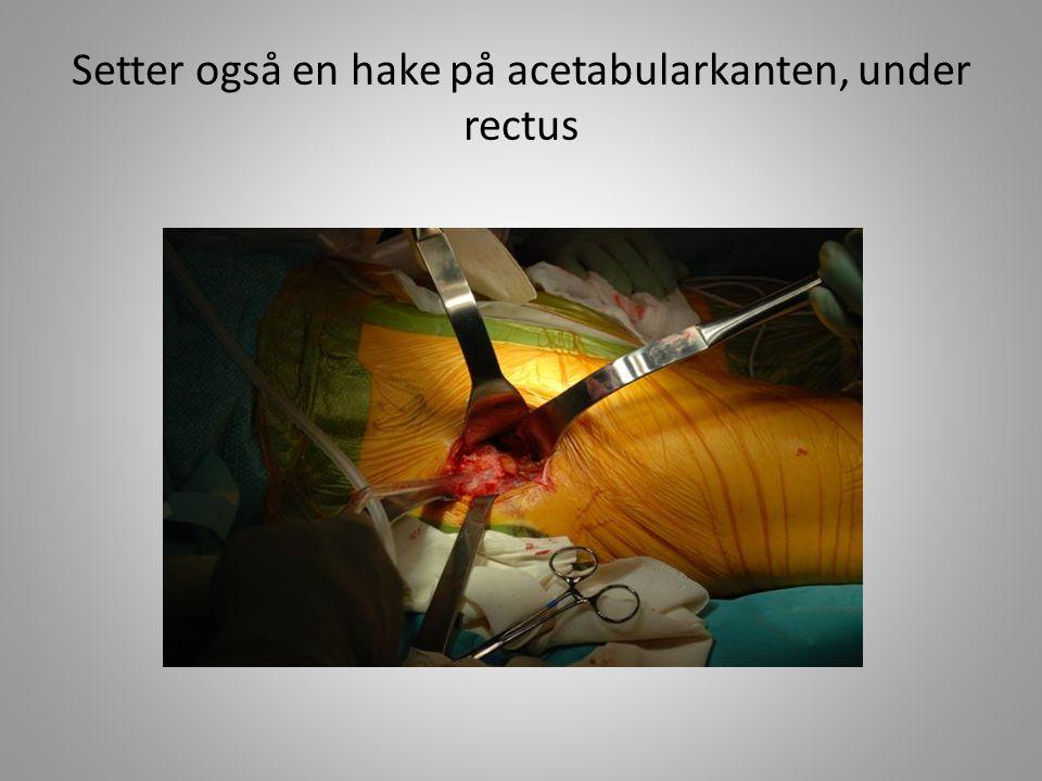 Setter også en hake på acetabularkanten, under rectus