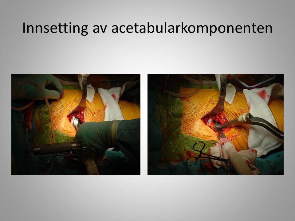 Koppen på plass. God oversikt over acetabulum med denne tilgangen.