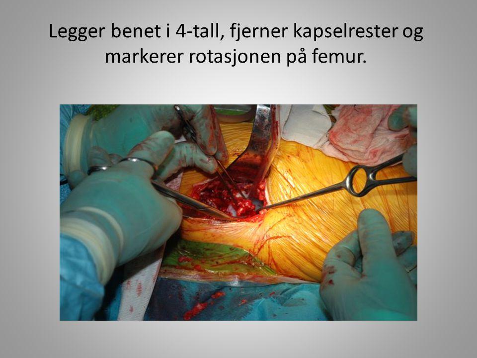 Legger benet i 4-tall, fjerner kapselrester og markerer rotasjonen på femur.