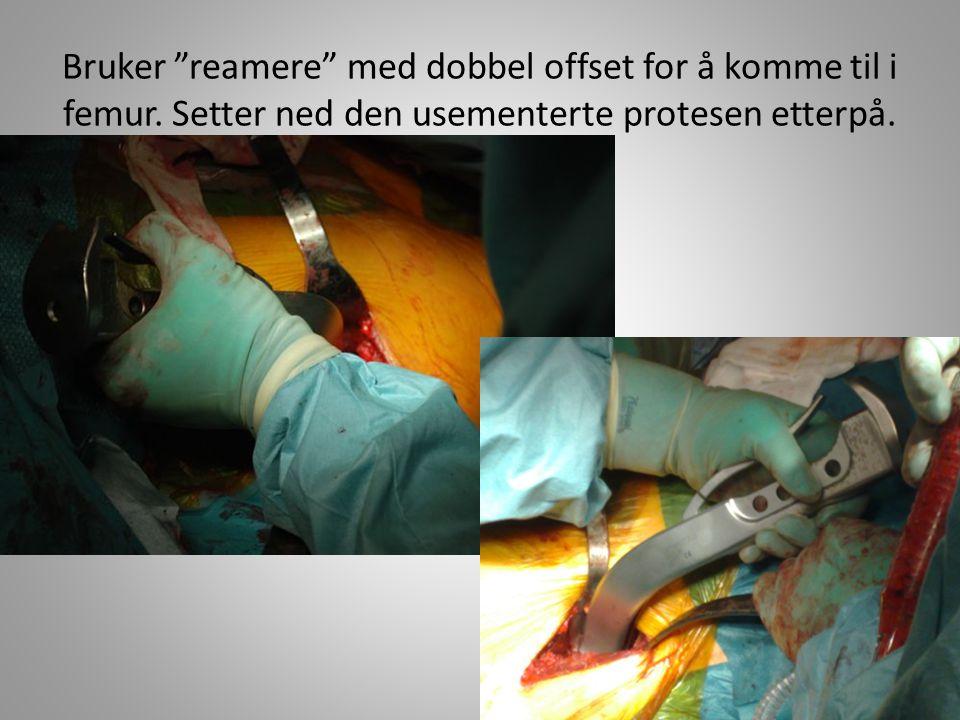 """Bruker """"reamere"""" med dobbel offset for å komme til i femur. Setter ned den usementerte protesen etterpå."""