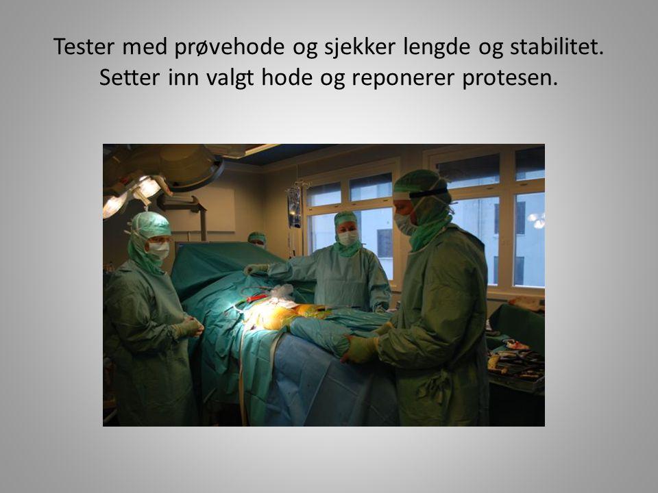 Tester med prøvehode og sjekker lengde og stabilitet. Setter inn valgt hode og reponerer protesen.