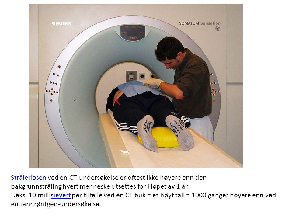 StråledosenStråledosen ved en CT-undersøkelse er oftest ikke høyere enn den bakgrunnstråling hvert menneske utsettes for i løpet av 1 år. F.eks. 10 mi