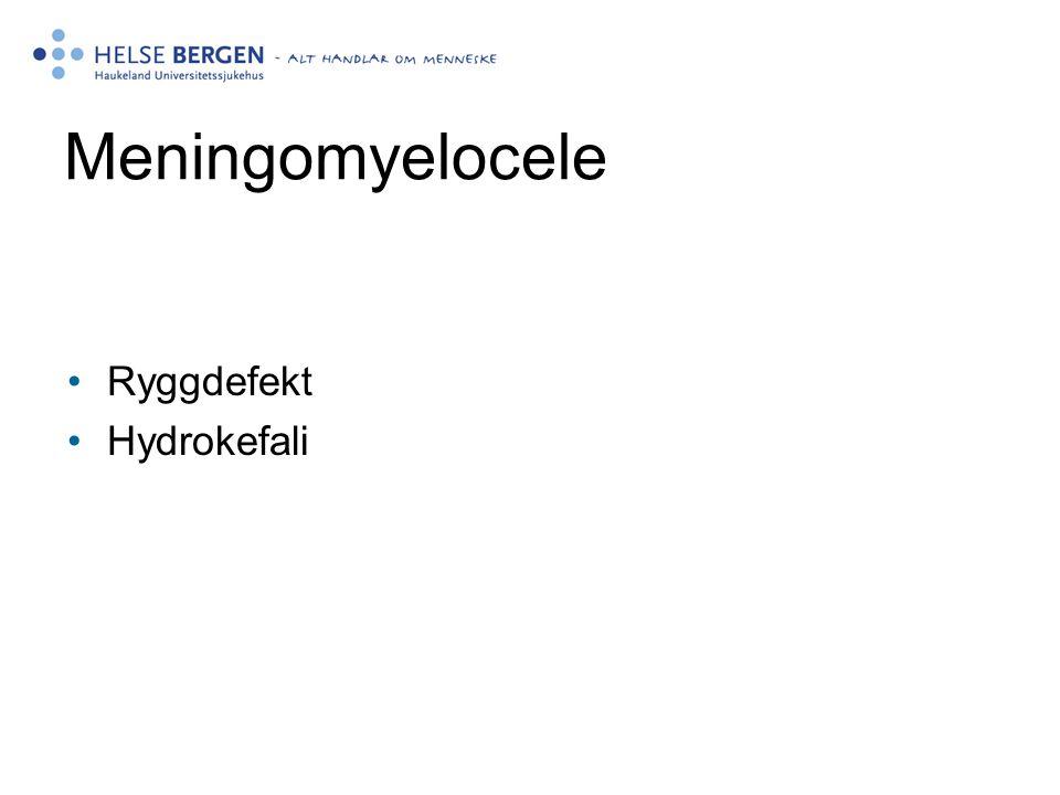 Meningomyelocele •Ryggdefekt •Hydrokefali