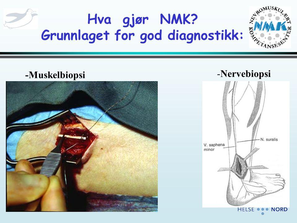 Hva gjør NMK? Grunnlaget for god diagnostikk: -Muskelbiopsi -Nervebiopsi