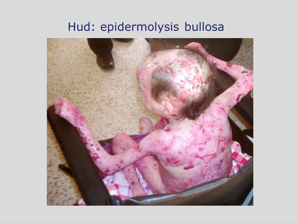 Hud: epidermolysis bullosa