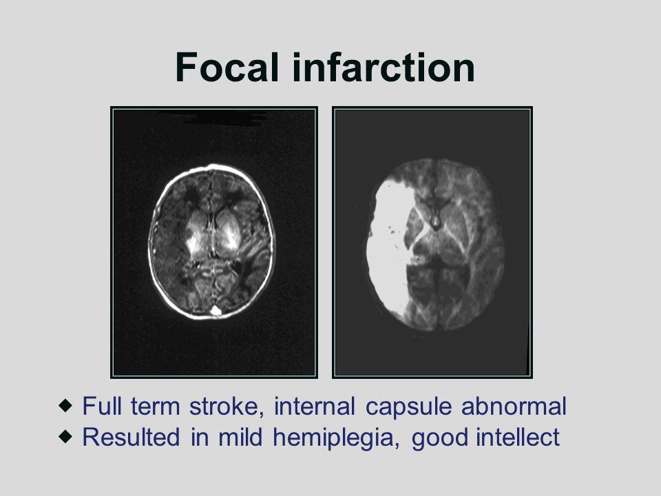 Focal infarction  Full term stroke, internal capsule abnormal  Resulted in mild hemiplegia, good intellect