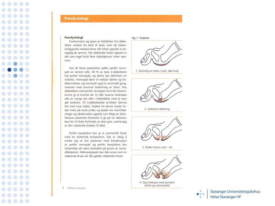 Mer info •Vil du vite mer om diabetes foten kan du gå inn på hovedmenyen på SUS,og så videre til oppslagsverk.