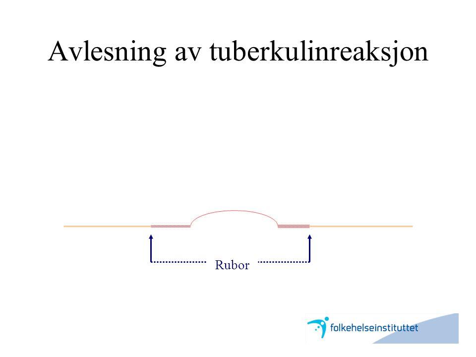 Avlesning av tuberkulinreaksjon Rubor