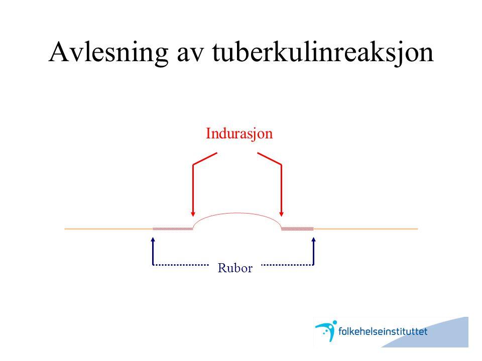 Avlesning av tuberkulinreaksjon Indurasjon Rubor