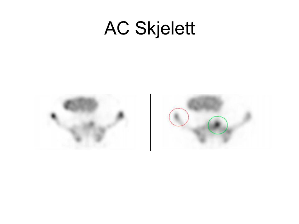 AC Skjelett