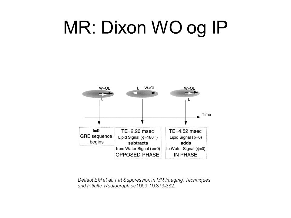 MR: Dixon WO og IP Delfaut EM et al.Fat Suppression in MR Imaging: Techniques and Pitfalls.