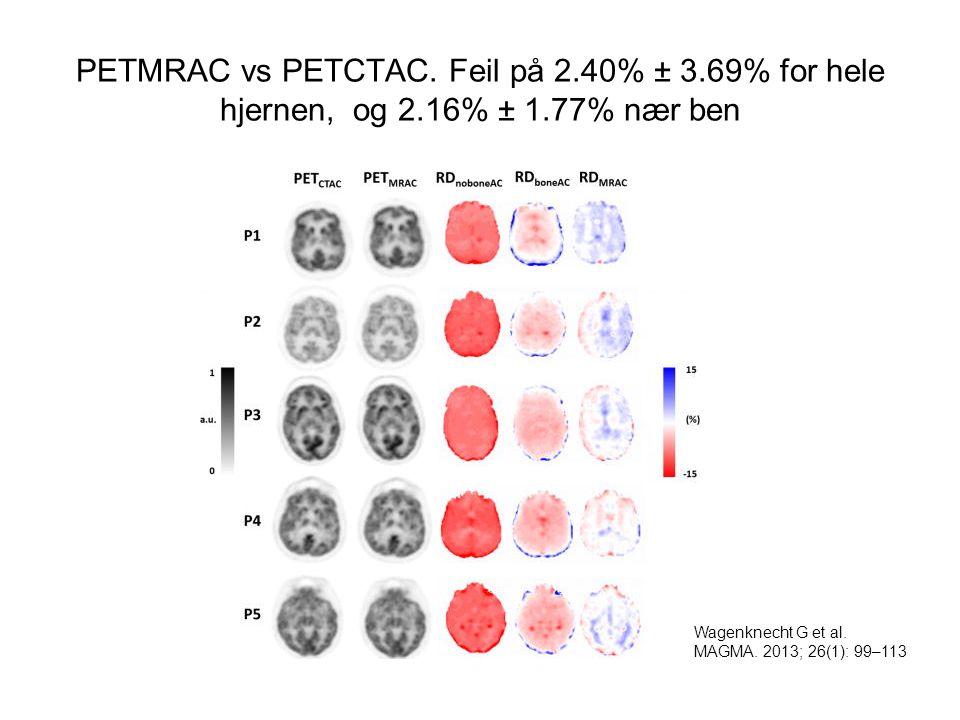 PETMRAC vs PETCTAC. Feil på 2.40% ± 3.69% for hele hjernen, og 2.16% ± 1.77% nær ben Wagenknecht G et al. MAGMA. 2013; 26(1): 99–113