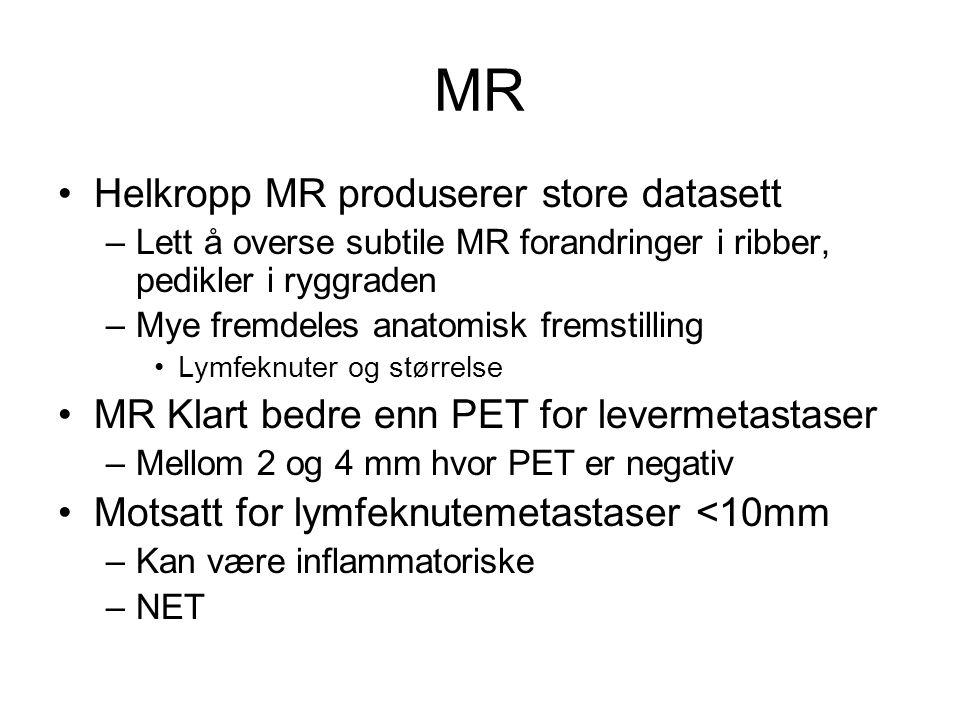 MR •Helkropp MR produserer store datasett –Lett å overse subtile MR forandringer i ribber, pedikler i ryggraden –Mye fremdeles anatomisk fremstilling