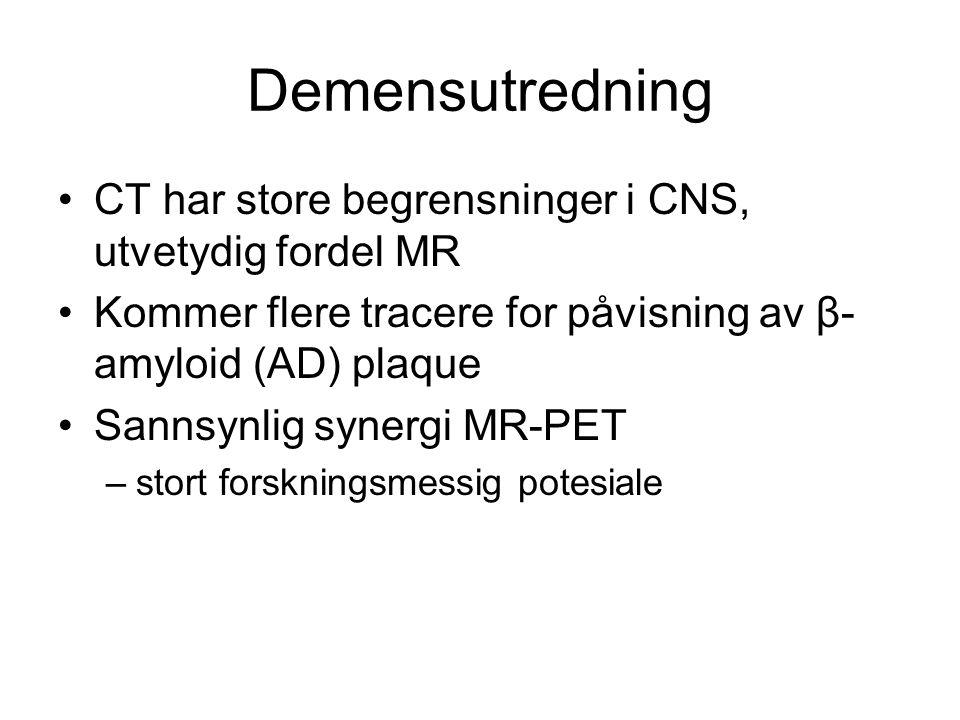Demensutredning •CT har store begrensninger i CNS, utvetydig fordel MR •Kommer flere tracere for påvisning av β- amyloid (AD) plaque •Sannsynlig syner