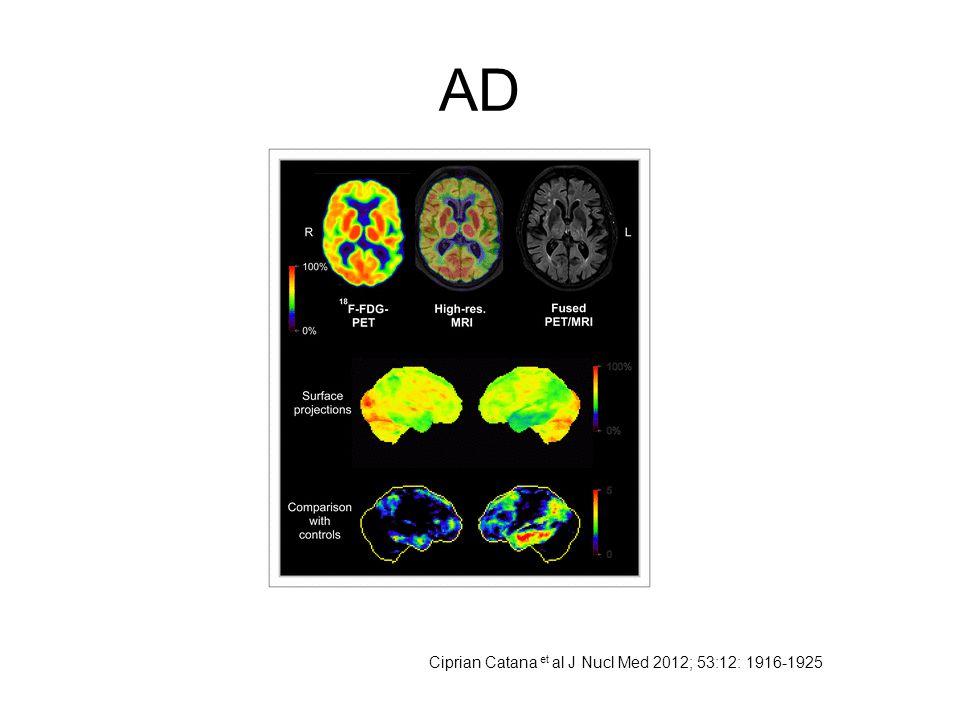 AD Ciprian Catana et al J Nucl Med 2012; 53:12: 1916-1925