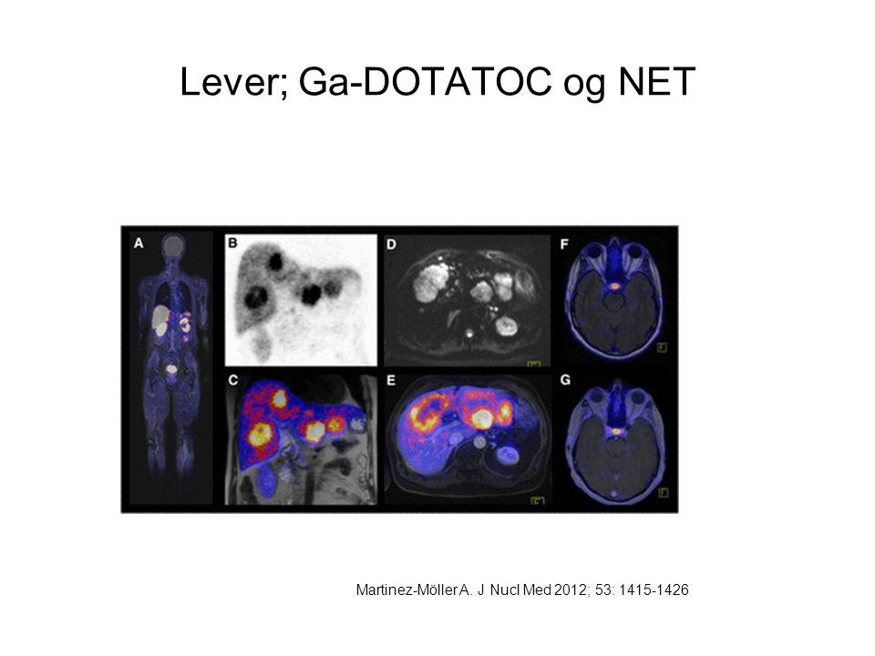 Lever; Ga-DOTATOC og NET Martinez-Möller A. J Nucl Med 2012; 53: 1415-1426