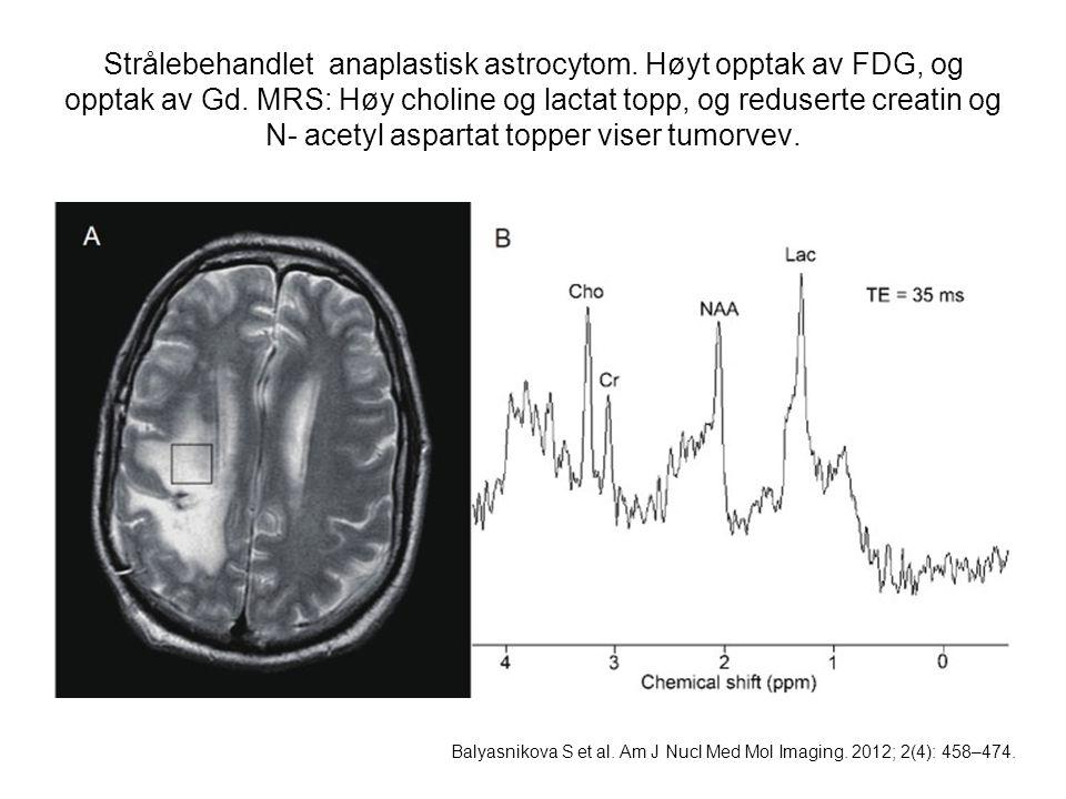 Strålebehandlet anaplastisk astrocytom. Høyt opptak av FDG, og opptak av Gd. MRS: Høy choline og lactat topp, og reduserte creatin og N- acetyl aspart