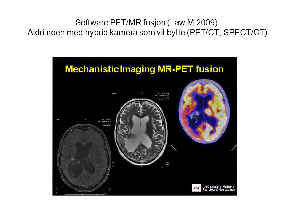Software PET/MR fusjon (Law M 2009). Aldri noen med hybrid kamera som vil bytte (PET/CT, SPECT/CT)