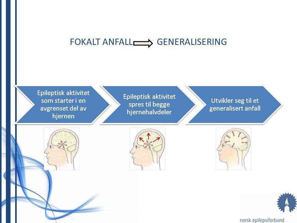 FOKALE ANFALL • Hyppigst forekommende anfall • Fokale anfall med og uten nedsatt bevissthet • Kan generaliseres, da oftest et GTK-anfall