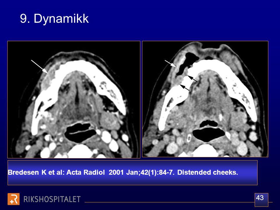 9. Dynamikk Bredesen K et al: Acta Radiol 2001 Jan;42(1):84-7. Distended cheeks. 43