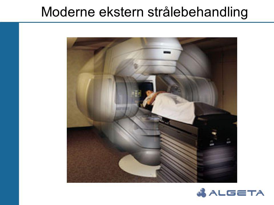 Moderne ekstern strålebehandling
