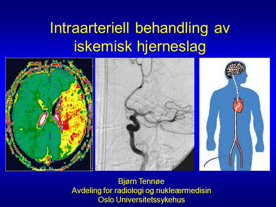 Bjørn Tennøe Avdeling for radiologi og nukleærmedisin Oslo Universitetssykehus Intraarteriell behandling av iskemisk hjerneslag