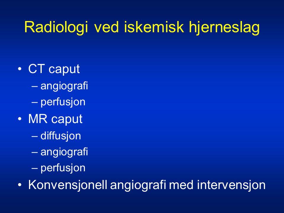 CT caput •God tilgjengelighet og raskt •Høy sensitivitet for påvisning av blødning •Lav sensitivitet for tidlige iskemi-tegn –18 - 46 % etter 6 timer –< 60 % etter 24 timer •Tidlige iskemitegn vanskelig tolkbare