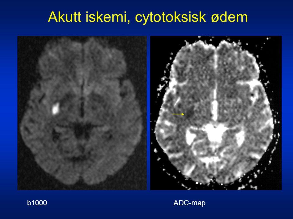 b1000: HøysignalADC-map: Lavsignal Akutt iskemi, cytotoksisk ødem b1000 ADC-map