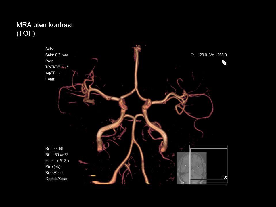 CT-angiografi •Moderne multidetektor-CT: Arteriell fremstilling fra arcus aorta og forbi circulus Willisi •En iv.