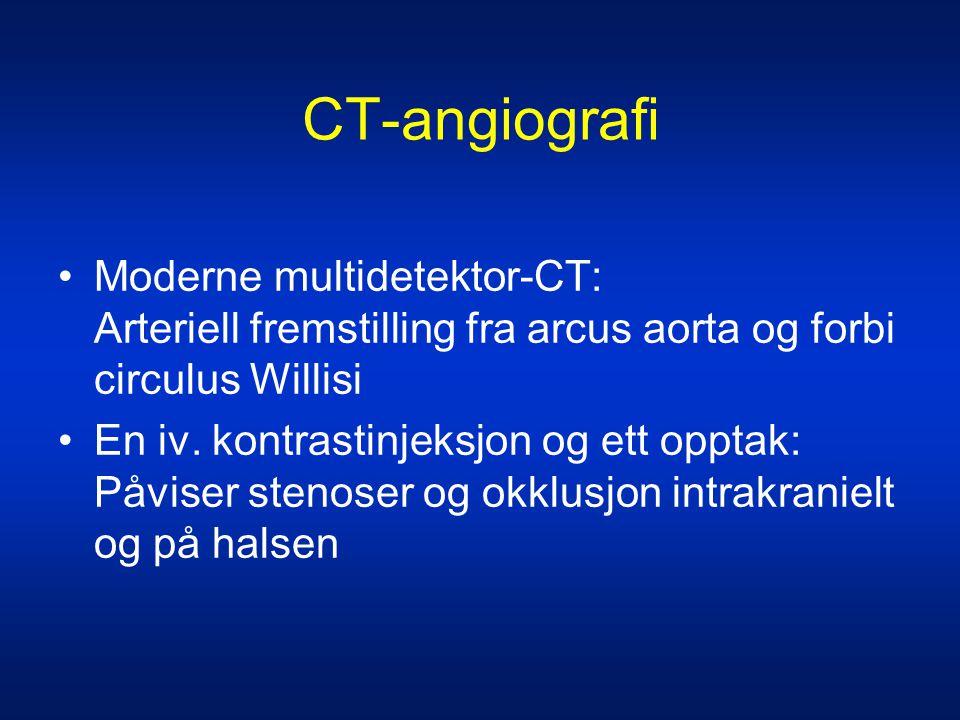 CT-angiografi •Moderne multidetektor-CT: Arteriell fremstilling fra arcus aorta og forbi circulus Willisi •En iv. kontrastinjeksjon og ett opptak: Påv