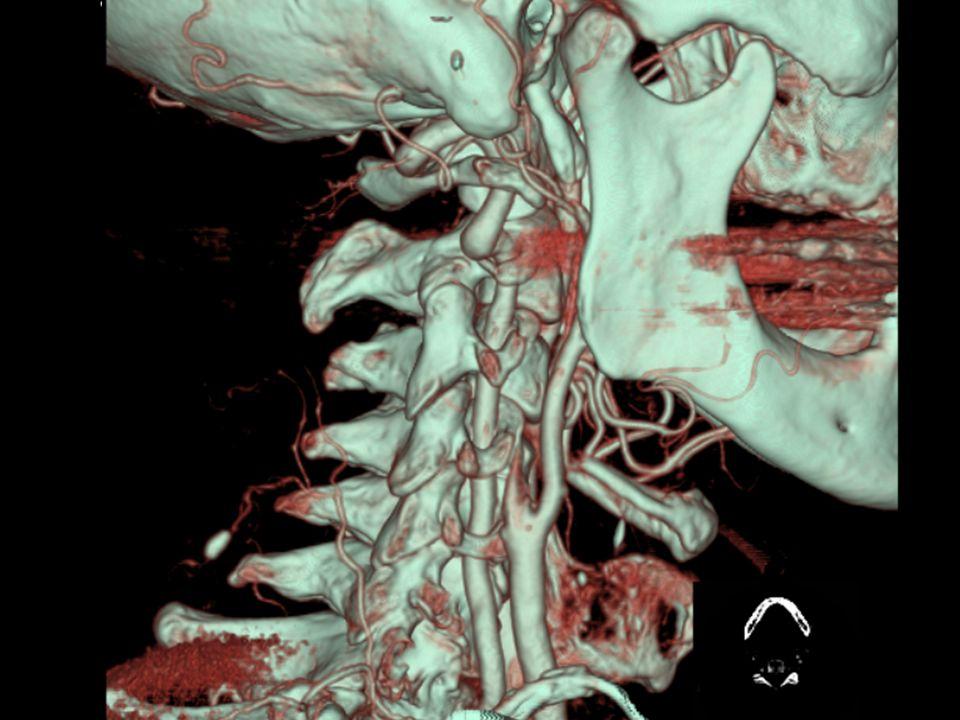 Radiologi ved akutt hjerneslag •Blødning •Irreversibelt infarkt •Karobstruksjon •Truet, viabelt vev  Perfusjon