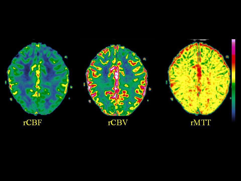 Perfusjon – hemodynamiske parametere •CBV = cerebralt blodvolum –Totalt volum av blod i vevet •CBF = cerebral blodflow –Kapillær flow i vevet •MTT = mean transit time –gjennomblødningstid CBV CBF MTT =