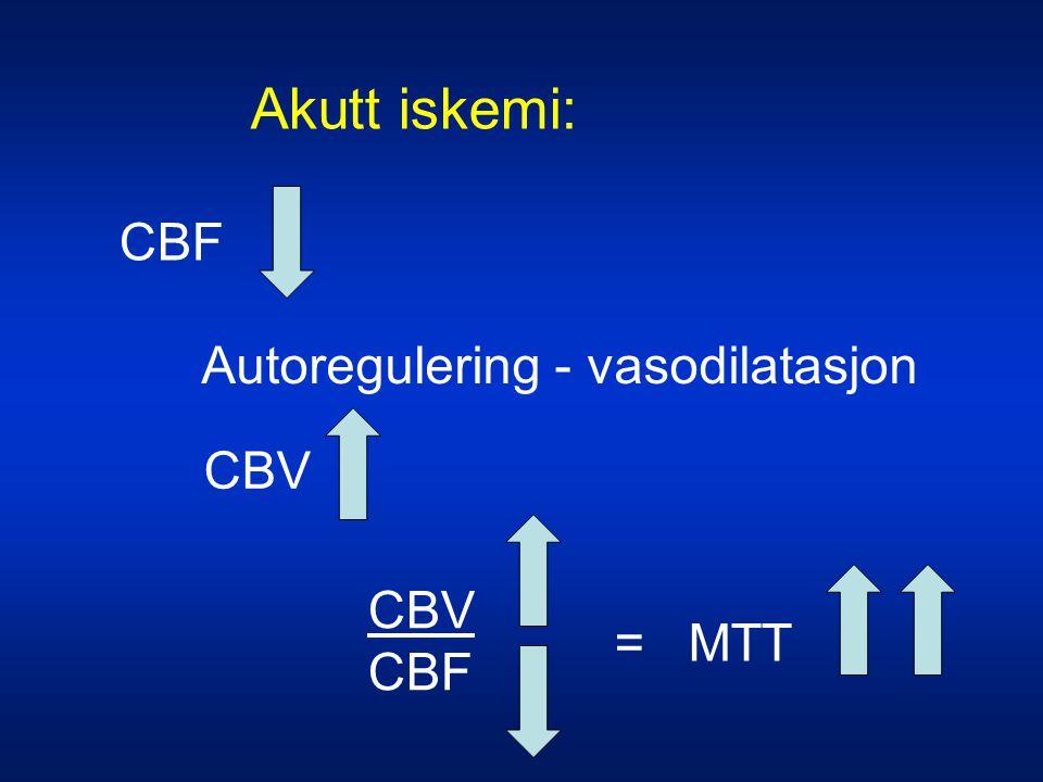 Akutt iskemi: CBF Autoregulering - vasodilatasjon CBV = MTT CBV CBF