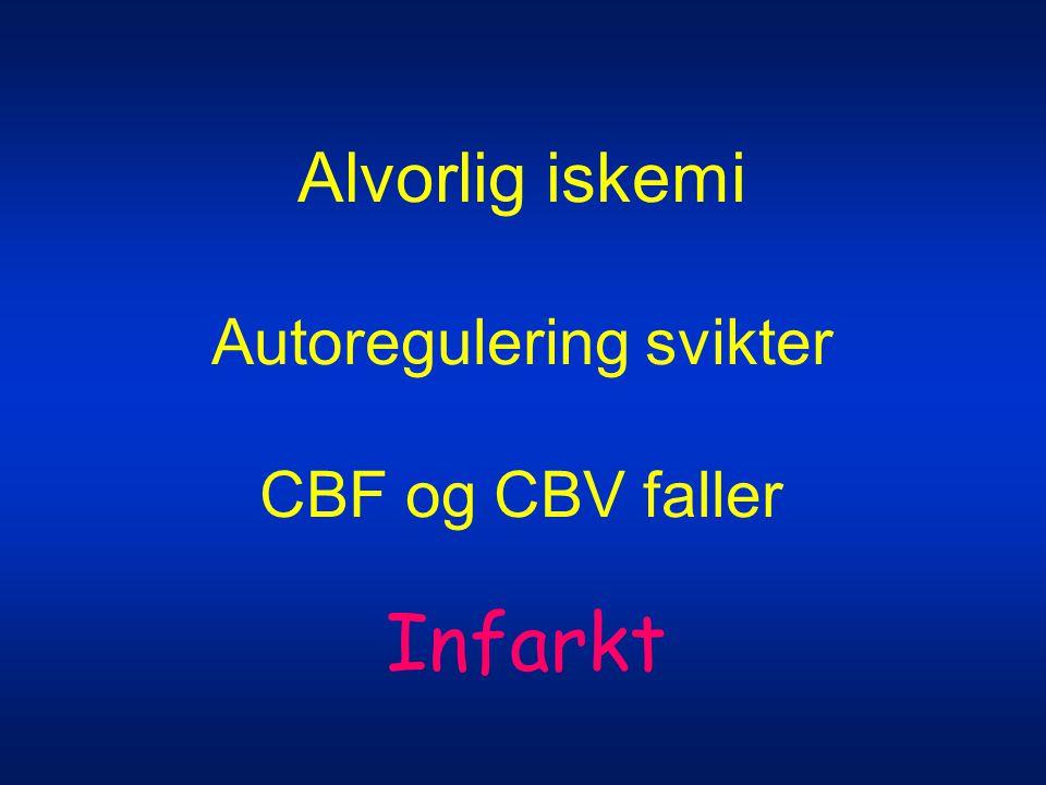Alvorlig iskemi Autoregulering svikter CBF og CBV faller Infarkt