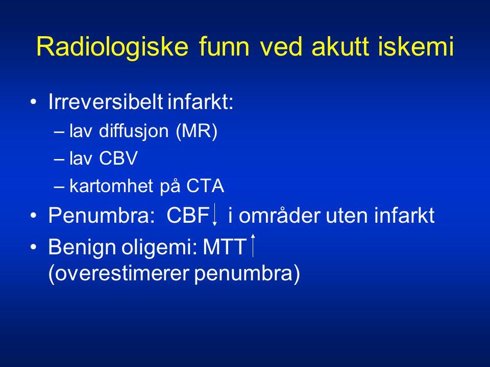 Radiologiske funn ved akutt iskemi •Irreversibelt infarkt: –lav diffusjon (MR) –lav CBV –kartomhet på CTA •Penumbra: CBF i områder uten infarkt •Benig
