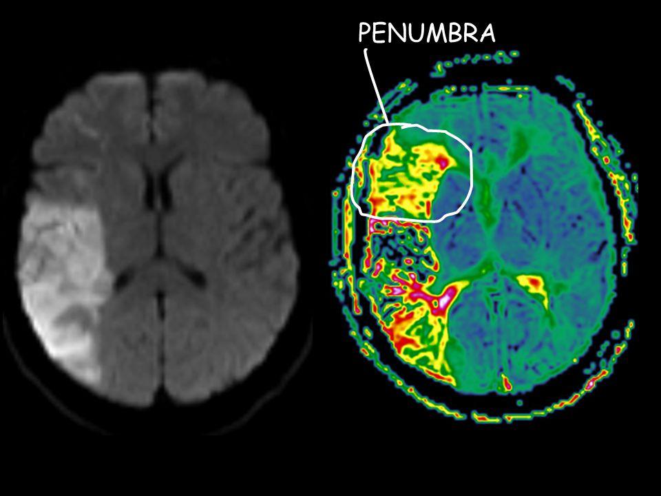 CT- vs.MR-perfusjon ved akutt iskemi •42 pas.