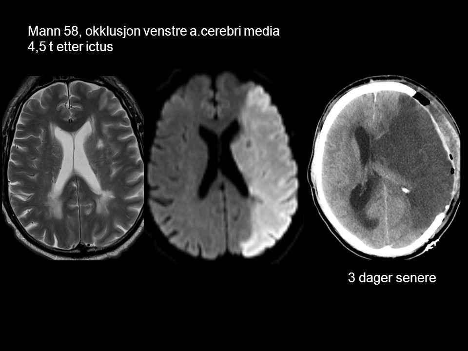 Mann 58, okklusjon venstre a.cerebri media 4,5 t etter ictus 3 dager senere