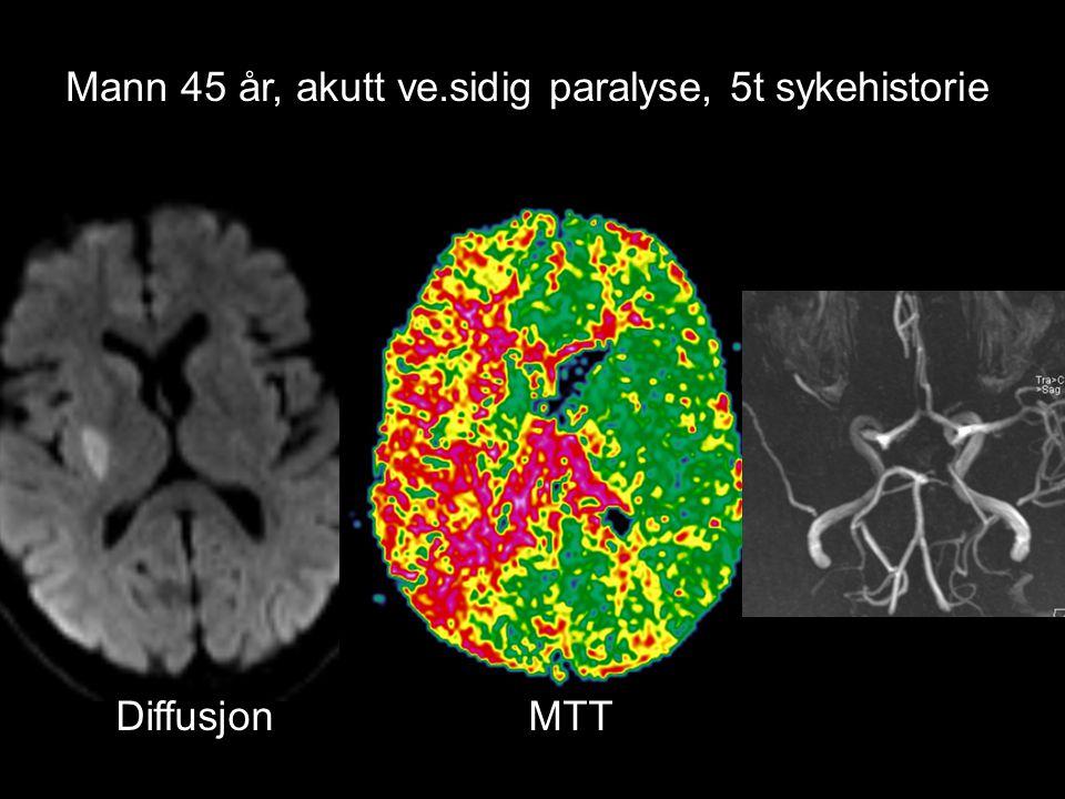 Mann 45 år, akutt ve.sidig paralyse, 5t sykehistorie Diffusjon MTT