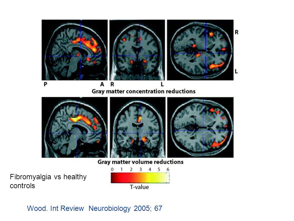 Wood. Int Review Neurobiology 2005; 67: 119-163 Fibromyalgia vs healthy controls