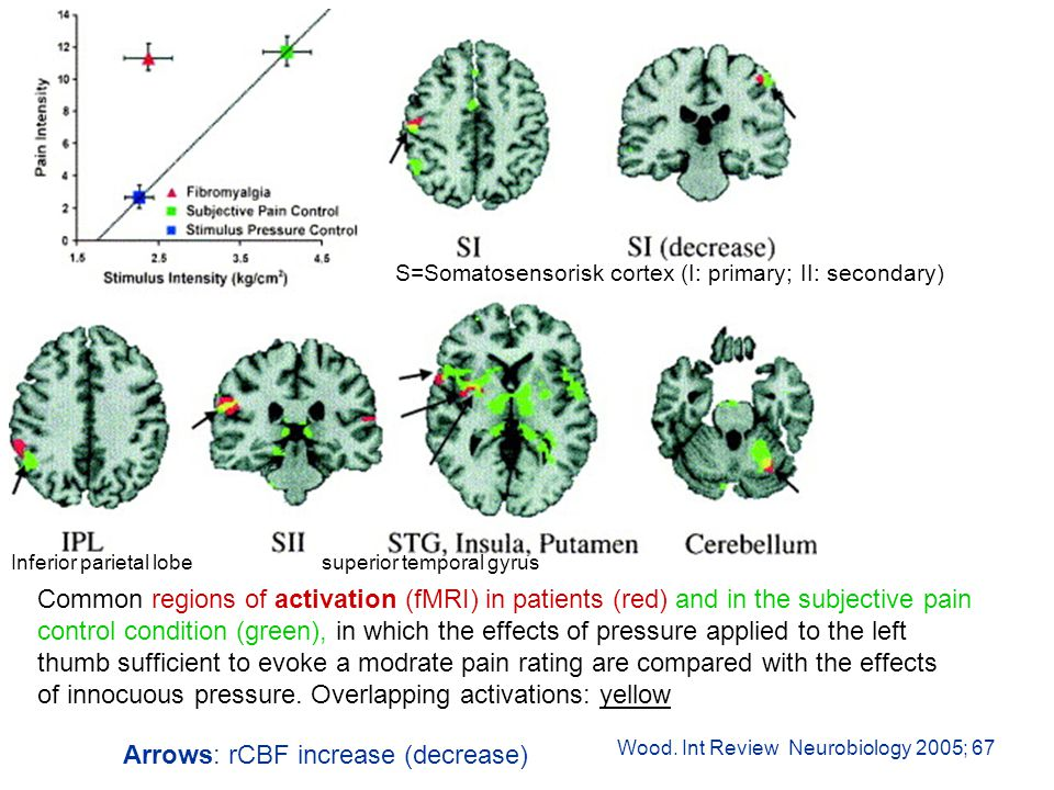 Common regions of activation (fMRI) in patients (red) and in the subjective pain control condition (green), in which the effects of pressure applied to the left thumb sufficient to evoke a modrate pain rating are compared with the effects of innocuous pressure.